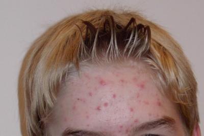 Natural Acne Skincare