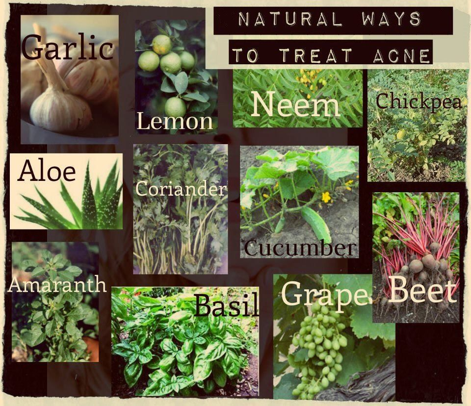Acne Herbal Solutions
