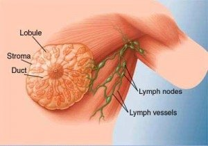 Schematic of Lymph Vessels (www.mayoclinic.com)
